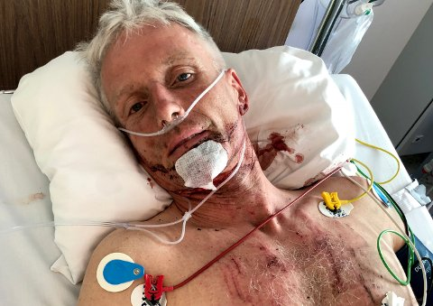 PÅ SYKEHUS: Pål Sørvoll ligger fortsatt på sykehus etter velten under veteran-NM. Foto: Privat