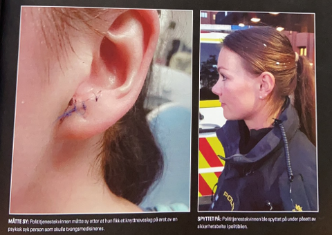 SPYTTET PÅ: Bildet til høyre er Silje Diserud etter at hun har blitt spyttet på. Bildet til venstre er av noen andre. (Faksimile fra Politiforum)
