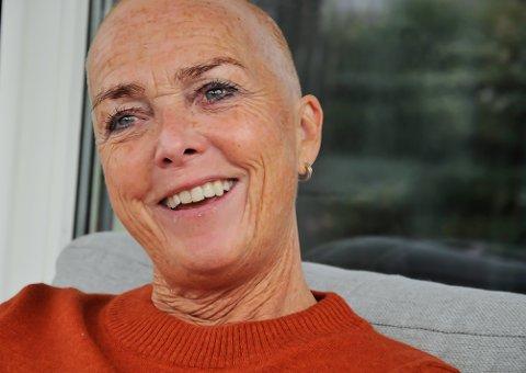 UTEN PARYKK: - Når noen ser på meg, ser jeg tilbake på de og smiler, sier Lise Dean. Hun har parykk, men bruker den sjelden.