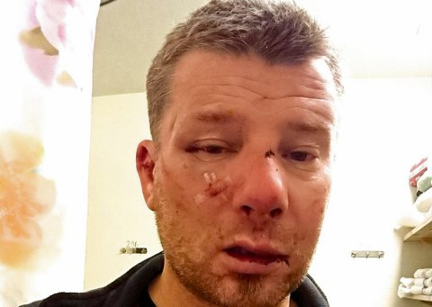 OMFATTENDE SKADER: Stig Are Johnsen hadde omfattende skader da han ble brakt til helsesenteret Sonjatun. Dette bildet er tatt morgenen etter overfallet.