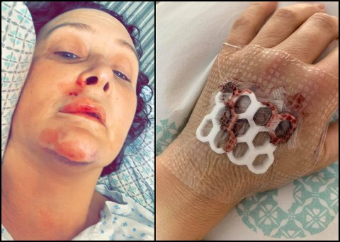 SKADET I ULYKKE: Stine Elton havnet på sykehuset etter en kollisjon med en bil på Toten. Hun måtte sy i hånda og har flere sting i munnen. Sjåføren av bilen stakk av.