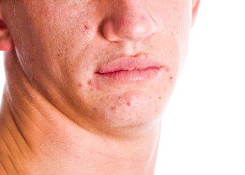 Selv om du aldri har hatt akne som tenåring, kan det dukke opp når du er voksen. Typiske områder det dukker opp er kinn og kjeve-partiet.