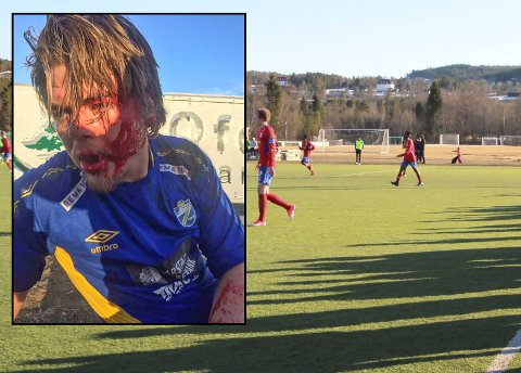 FORULEMPET: Saken der en Kvæfjord-spiller ble slått ned i Ballangen er sendt til mekling i konfliktrådet. Bildet fra Ballangen er ikke fra denne kampen. Innfelt: Simon Salen Aune.