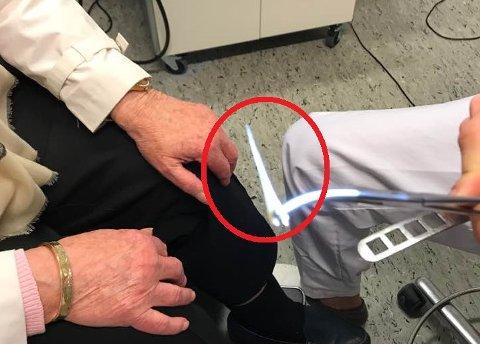 FIKK SJOKK: Verken legen, pasienten eller hennes svigerdatter hadde sett for seg at beinet som ble fisket ut av 78-åringens hals var så stort.