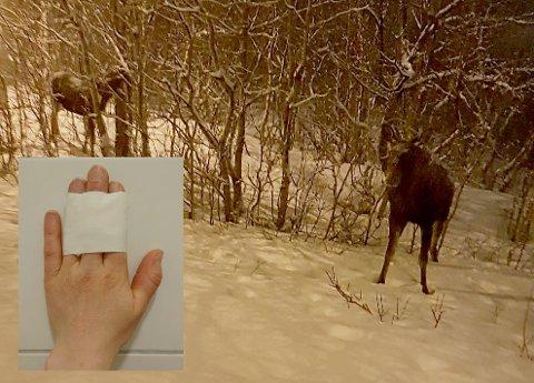 Synnøve Mortensen måtte tape fingrene etter møtet med elgen, men sier hun ikke ble hardt skadd eller spesielt redd.