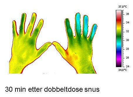 KALDERE: En halv time etter en dobbelt dose snus, så hendene slik ut i varmekameraet. Hudoverflaten var blitt mye kaldere. Foto: James Mercer, Det helsevitenskapelige fakultetet ved UiT Norges Arktiske Universitet.