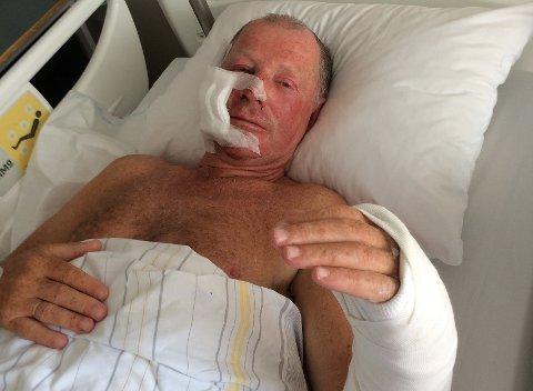 VED GODT MOT: Einar Hirsch (62) kom fra fallet på Møysalen med forslått kropp, brukket arm og skadet ansikt. Her fra sykesengen i Bodø.