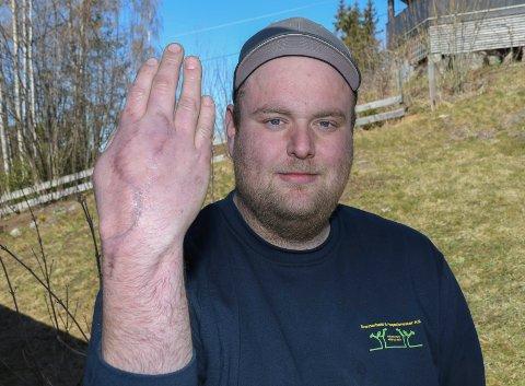 Heldig: - Hånda mi er 95 prosent funksjonell, og jeg kan bevege alle fingrene. Det er egentlig helt utrolig, sier Øystein Engen.