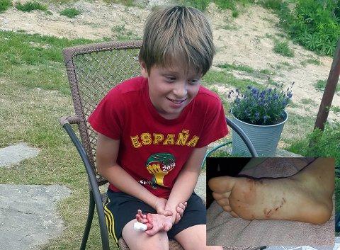 ANGREPET: Leon Flekstad (11) skulle bare teste badevannet da ei glupsk gjedde beit seg fast.