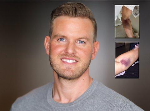 Andreas Oterholt ble skremt da han fikk se hvordan hans egen kropp reagerte på legemiddelet.