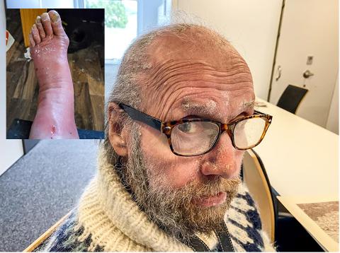 VAKSINE: Arvid Jacobsen føler helsevesenet ikke tar han på alvor. Etter den andre koronovaksinen har han levd i et smertehelvete, og mangel på lokal fastlege har ikke gjort hverdagen bedre.