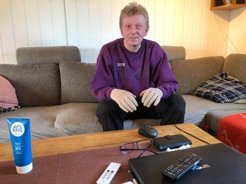 BRANNSKADD: Lars Erik Ørnov fikk andre-og tredjegradsforbrenning i ansiktet og på hendene da han helte bensin på bålet i oktober. Han vet ikke hvor lenge han vil trenge hjelp fra kommunen, men føler at det ikke tilrettelegges nok for ham.