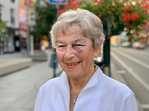 SMILER: Ursula (86) beveger seg ut i gatene også etter at hun ble påkjørt av en elsparkesykkel. Hun er veldig takknemlig for all hjelpen hun fikk av alle rundt seg.