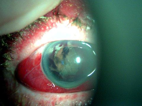 Bildet viser en skade fått av et effektbatteri. Det har gitt en blødning inne i øyet og skade av øyelinsen. Pasienten skal opereres på Haukeland.