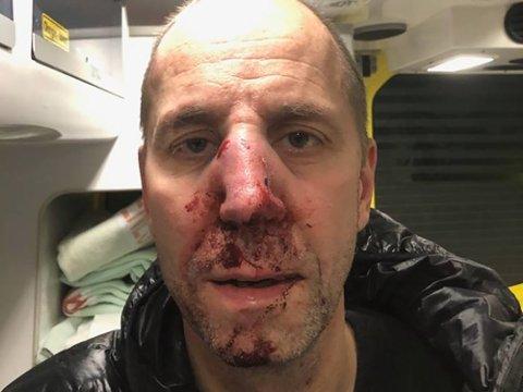 Slik så Rune Stubberud Larsen ut etter å ha blitt overfalt på Flytoget søndag.
