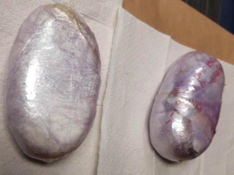 GJEMT I UNDERBUKSA: Disse to klumpene med kokain ble beslaglagt da en 57 år gammel mann fra Portugal forsøkte å smugle narkotikaen inn i Norge.