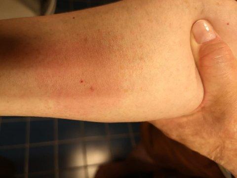 BITT: De røde merkene på Kirsten Winges underarm viser hvor hoggormen beit henne mandag kveld.