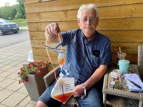 MÅTTE TA TOG: Med dren i magen og denne posen i hånda ble Kåre Lundar (73) sendt hjem fra Gjøvik sykehus med tog. – Nedverdigende, sier Lundar om det som skjedde.
