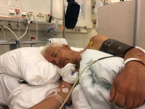 STORE SMERTER: Johan Vold ble innlagt med smertefulle skader etter ulykken.
