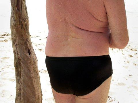 ADVARER: Nå kommer varmen, men Kreftforeningen advarer mot å bli solbrent. Det kan nemlig føre til føflekkreft.