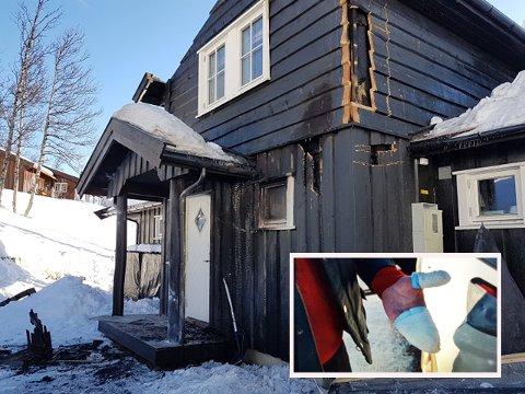 Hytteeieren fikk brannskader i hånda etter at han sammen med kona kjempet mot flammene.