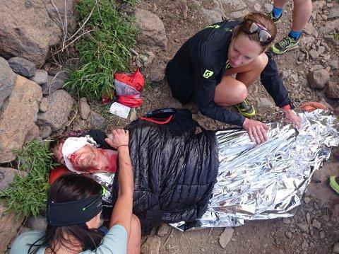DRAMATISK: - Bildene ser nok mer dramatiske ut enn det egentlig var, sier fjelløper Hans Kristian Smedsrød fra Tromsø, som måtte hentes med helikopter ned fra fjellet på Gran Canaria til sykehusopphold etter et ublidt møte med stisteiner.