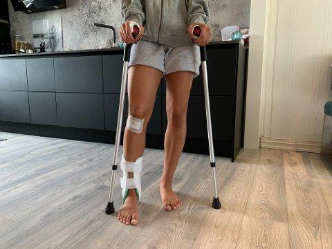 FORSLÅTT: 17-åringen fikk scooteren over beinet da den veltet, og har skadet ankele, masse blåmerker og skrubbsår på et kne og i håndflatene.