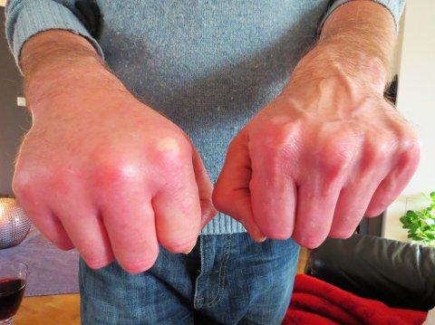 PÅ BEDRINGENS VEI: Her er Brian Hoys hånd etter behandling på legevakt lørdag etter å ha stukket seg på fjesing. Smertene var store, og 53-åringen følte seg uvel og nær ved å besvime.
