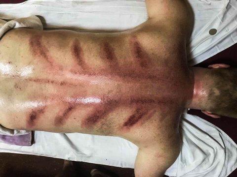 STORE MERKER: Slik så ryggen til Petter ut etter hans massasje i Kina.