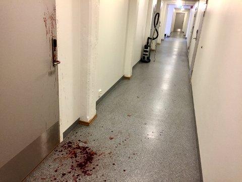 FLYKTET: Blodsporene i gangene viste hvordan 25-åringen blødende flyktet vekk og ned trappene etter at han var skutt.