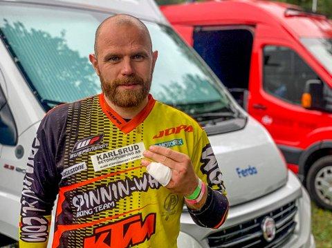 UHELDIG: André Wold Larsen planta lillefingeren i et tre i Nederland. Dermed mister han helgens avsluttende EM-runde i enduro.