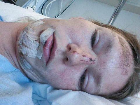 SJOKK: Slik så Charlene ut da hun våknet opp på sykehuset