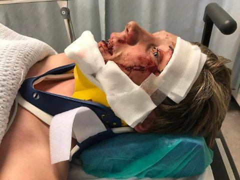 TIL OBSERVASJON: Etter at CT-undersøkelsen viste at det ikke var nakke- eller hodeskader, kunne Kristoffer Nygreen Grave (14) fra Nøtterøy ta av seg nakkekragen. Men noen sår i ansiktet måtte lappes sammen.