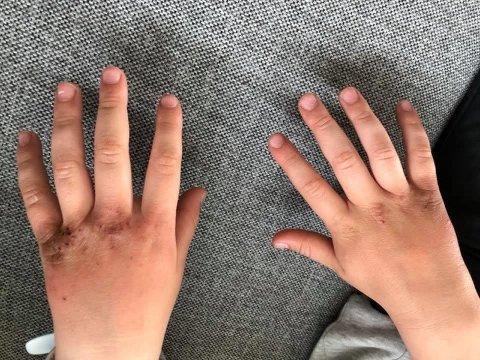 SÅR: Barneskoleelevens hender så slik ut etter å ha vasket hendene på skolen. Nå bytter kommunen til parfymefri såpe etter at flere elever har opplevd det samme.