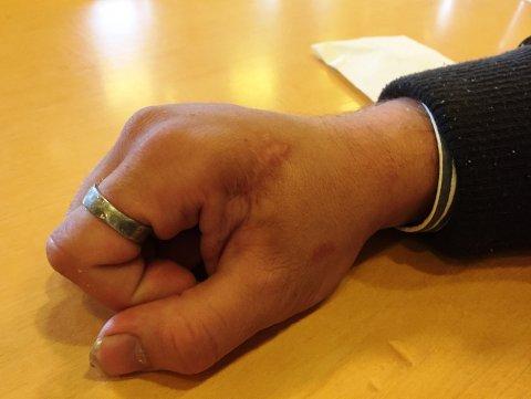 Ransofferet har fortsatt et stort arr etter macheten, og sliter med å bruke hånden. Han er 50 prosent arbeidsufør.