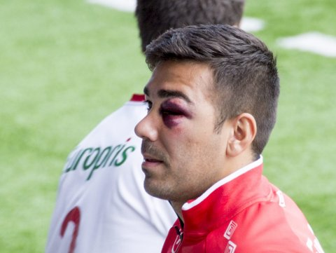 KLAR TIL DYST: Sanel Kapidzic ser lyst på det igjen etter smellen han pådro seg i venstre øye tidligere i uken. Foto: Erik Hagen