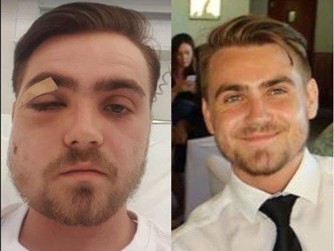 NYOPERERT: På bildet til høyre er Jostein Skaar (20) slik han ser ut til daglig. Til venstre ligger han nyoperert på sykehuset.