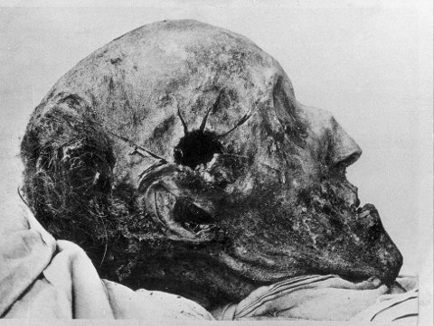 SKUDDSKADENE: Kraniet til Karl XII viser hvor kula gikk inn. Graven til svenskekongen har vært åpnet flere ganger i håp om at ny teknologi kunne gi svaret på hva, og kanskje hvem, som skjøt og drepte ham.