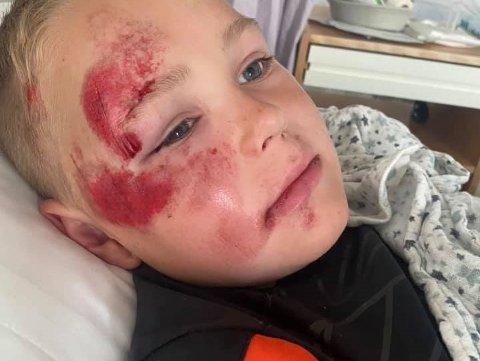 Lucas Christoffer (7) falt av sykkelen i høy fart, nå vil han at alle skal vite hvor viktig det er å bruke hjelm.