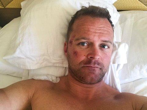 Espen Ødegaarden ble slått bevisstløs og husker ingenting av sykkelulykken på Mallorca søndag ettermiddag. – Jeg har veldig skallebank og vondt i kjeven, men regner med å bli skrevet ut i løpet av dagen, sa han optimistisk fra sykesenga mandag formiddag.