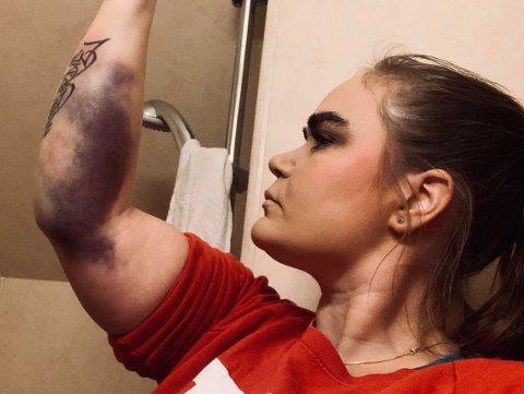 SKADEFORFØLGD: Slik ser armen til Ingeborg Flaate ut etter at ho datt av hesten like etter at ho hadde begynt å trena sprangriding igjen etter uhellet i fjor.