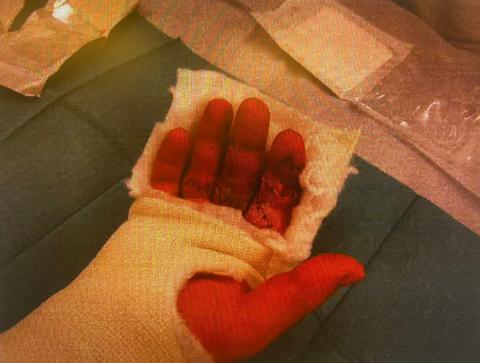 SKADER: Mannen hadde kuttskader i tre fingre på høyre hånd, samt et 7 millimeter kutt i venstre tinning.