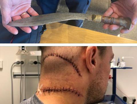 SYDD: Etter å ha blitt stukket med denne kniven, som ble vist frem i retten, fikk mannen to dype og lange sår. Bildet publiseres etter godkjenning av den fornærmede mannen i 30-årene.