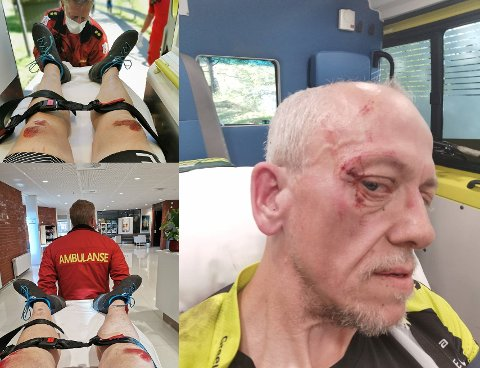 STJERNESMELL: Onsdag kveld endte Terje Roger Olsen fra Elverum opp på sjukehuset etter å ha tryna på sykkel. Nå etterlyser han redningsmennene sine gjennom Østlendingen.