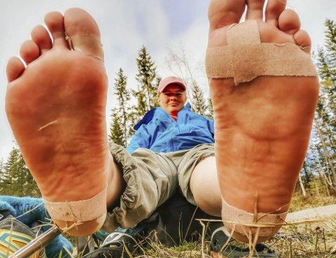 AU AU: Gnagsår under føttene kan være skikkelig vondt. Foto: privat