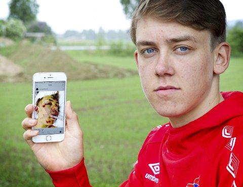 Husker ingenting: Tobias Halvorsen husker ingenting fra sykkelulykken som holdt på å ta livet av ham. – Jeg             husker bare at jeg gikk ut døra og var stresset, sier han. Bilder: ole-johnny myhrvold