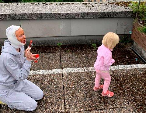 SKADET: Gerd Inger Aarnes fra Surnadal er for tiden på Haukeland Universitetssykehus der hun behandles for brannskadene hun ble påført da en bordlampe eksploderte. Her har hun første gjensyn med datteren Ellinor 16 dager etter ulykken.