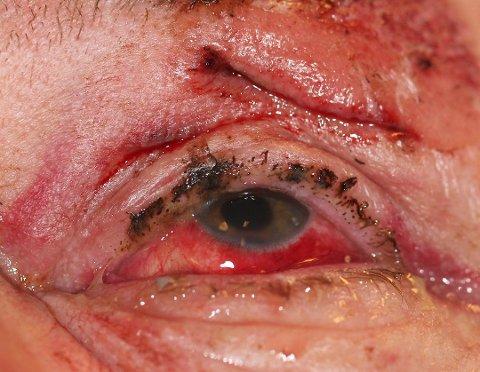 Denne pasienten ved Førde Sentralsjukehus var blant dem som fikk øyeskader av fyrverkeri under nyttårsfeiringen i fjor. (Foto: Augeavdelinga Førde Sentralsjukehus / NTB scanpix)