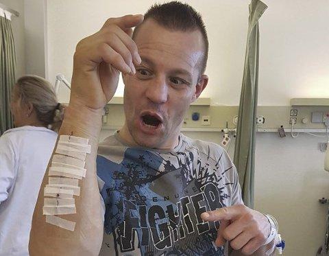 Roy Wischmann beviste i NM at han er tøffere enn de fleste, da han tok gull med brukket arm! Her har han akkurat fått fikset opp i skaden.