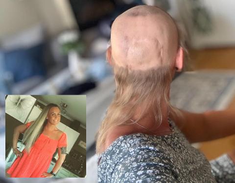 PLUTSELIG DYRT: Kreftoverlevende Christell Wilsgård har hatt parykk siden hun var 16 år. Nå er hun 31 år og må betale nesten alt fra egen lomme.